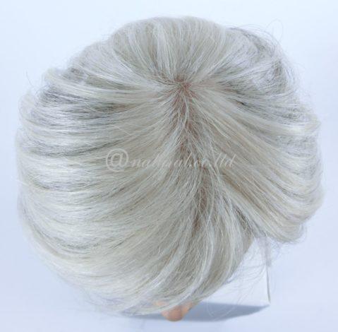 抗がん剤治療を終えてもなかなか髪が生えそろわない。そんな時には?